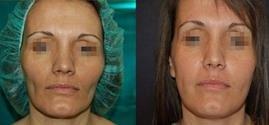 lipofilling-viso